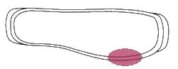 borsite 5 metatarso-TRASPARENTE