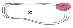 unghia incarnita-TRASPARENTE